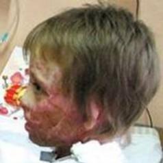 Angelika Dwojak - zdjęcie przed operacją