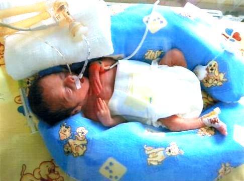zdjęcie Malenii zaraz po urodzeniu